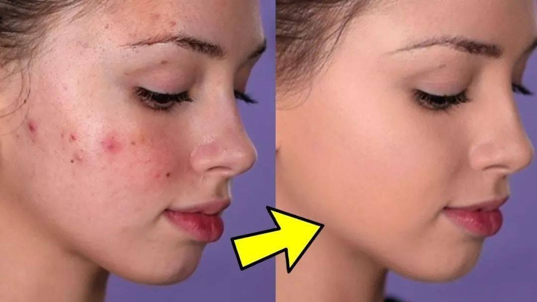 Top 5 Best Cover up for Acne: How to Get Rid of Acne Fast